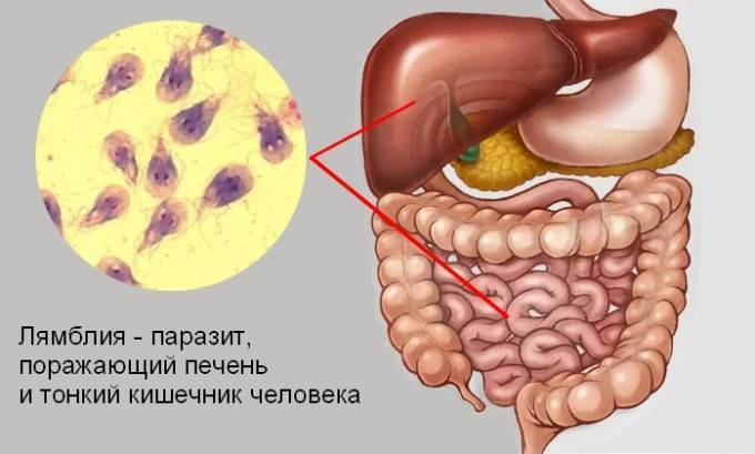 Лямблии в печени: признаки, симптомы, лечение, диагностика и профилактика
