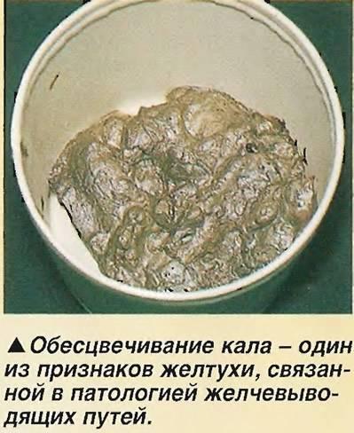 Кал при гепатите