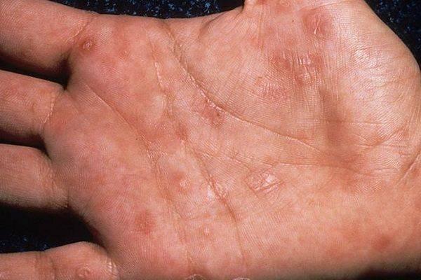 Какие типы герпеса существуют — краткое описание разновидностей герпесвируса