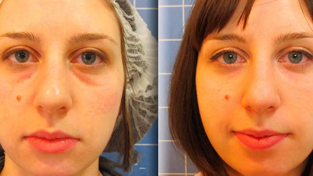 Мешки под глазами - как убрать в домашних условиях? - причины и лечение | здрав-лаб