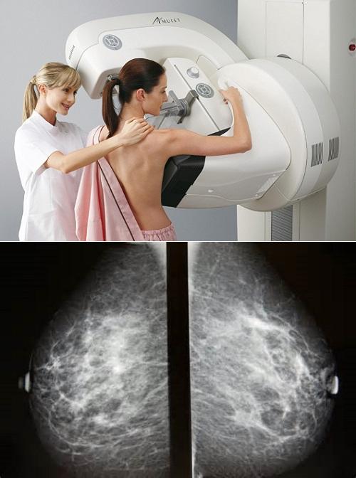 Маммография — на какой день цикла стоит пройти обследование?