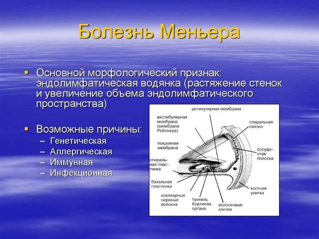 болезнь меньера лечение