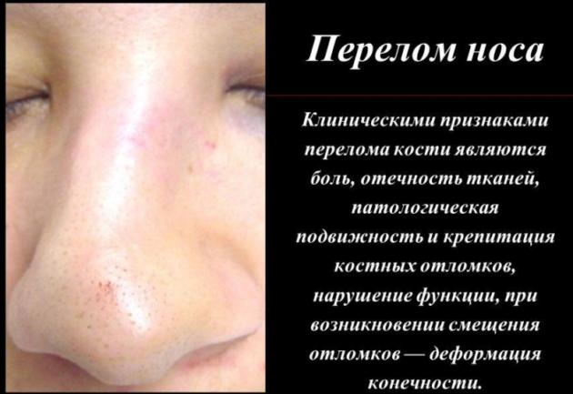 как понять сломан ли нос