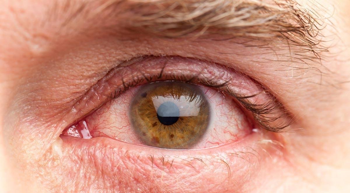 Кандидоз глаз: особенности, симптомы, лечение
