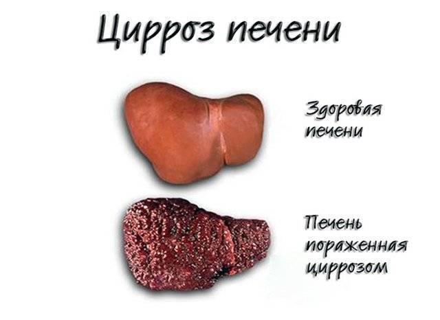 какие признаки цирроза печени у женщин