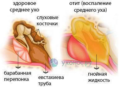 У ребенка из уха вытекает коричневая жидкость. желтая жидкость из уха