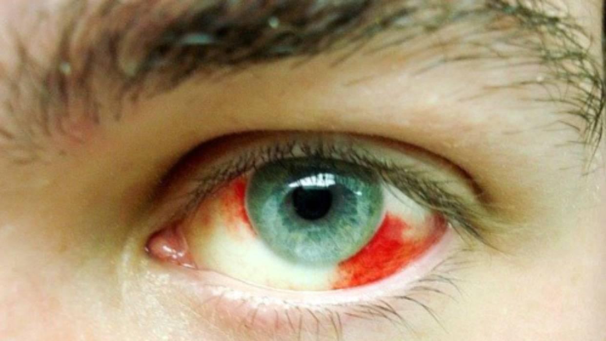 Что делать, если лопнул капилляр в глазу у ребенка – экстренная помощь