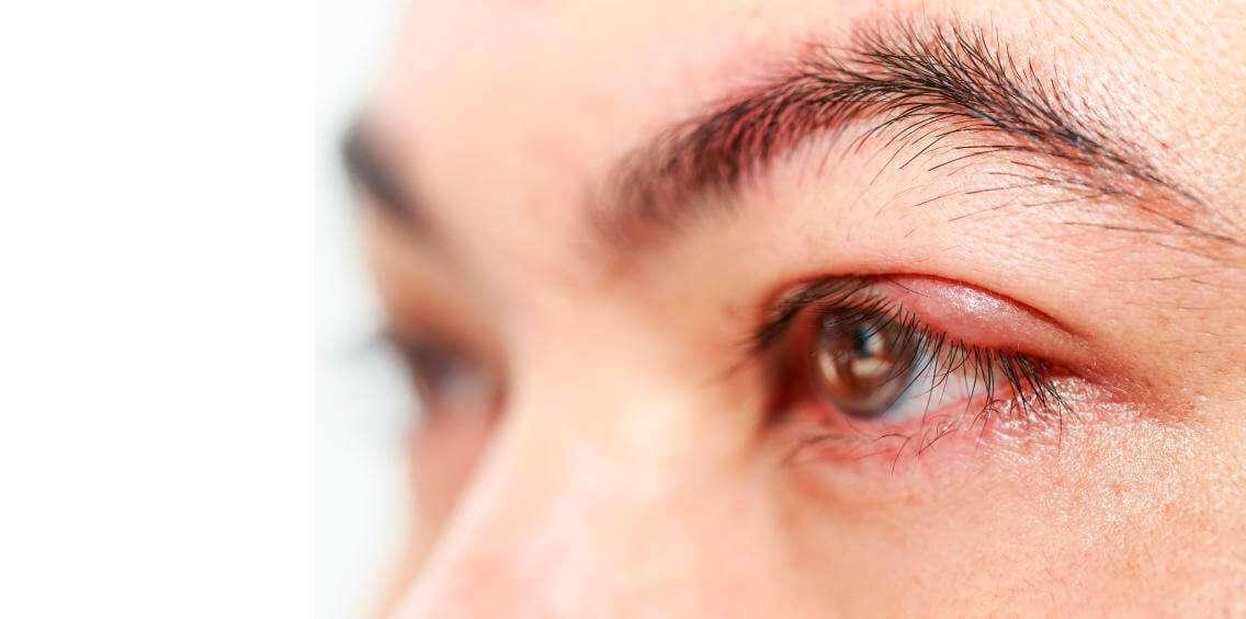 Ячмень внутри глаза