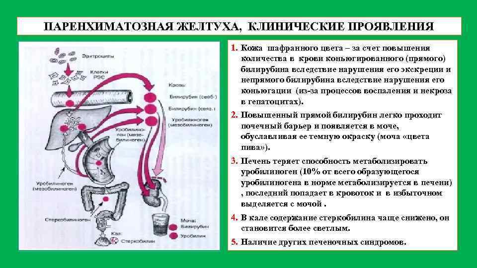 Паренхиматозная желтуха: причины, признаки и дифференциальная диагностика