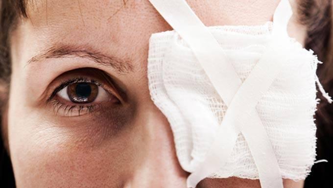 Травма глаза. лечение
