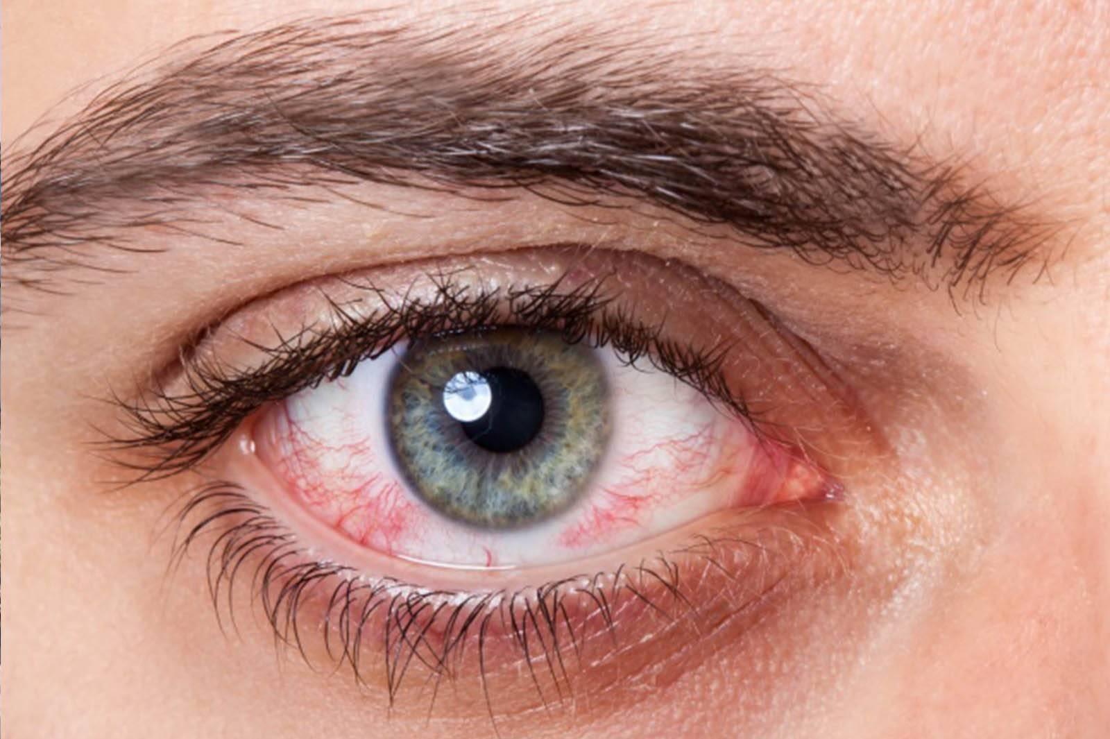 после душа красные глаза