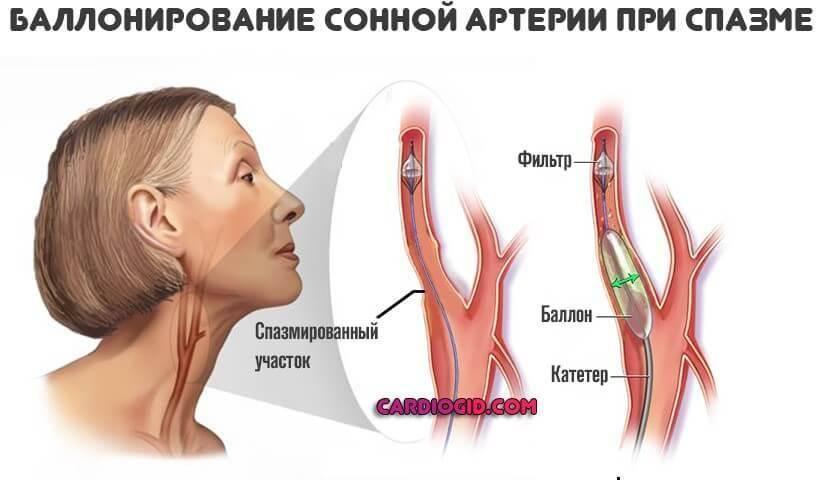 Атеросклероз бца, что это такое? лечение стенозирующей и нестенозирующей формы