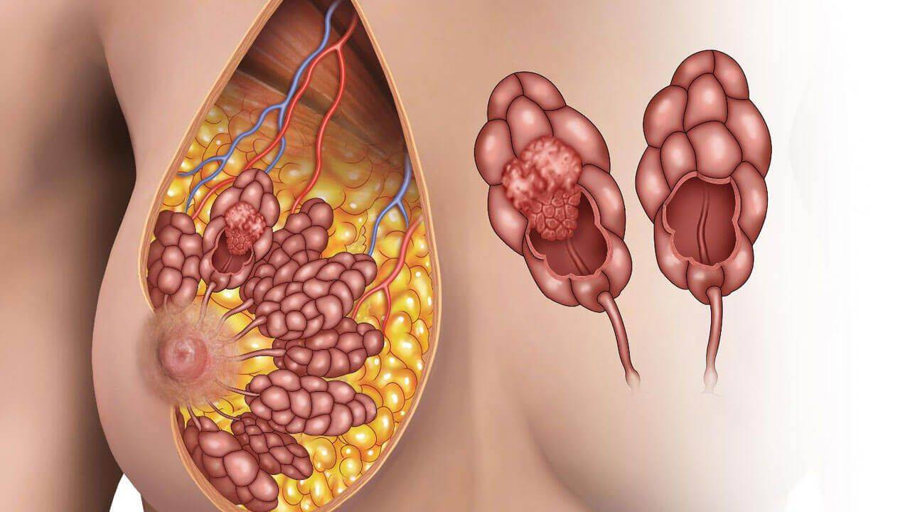 как быстро развивается рак молочной железы