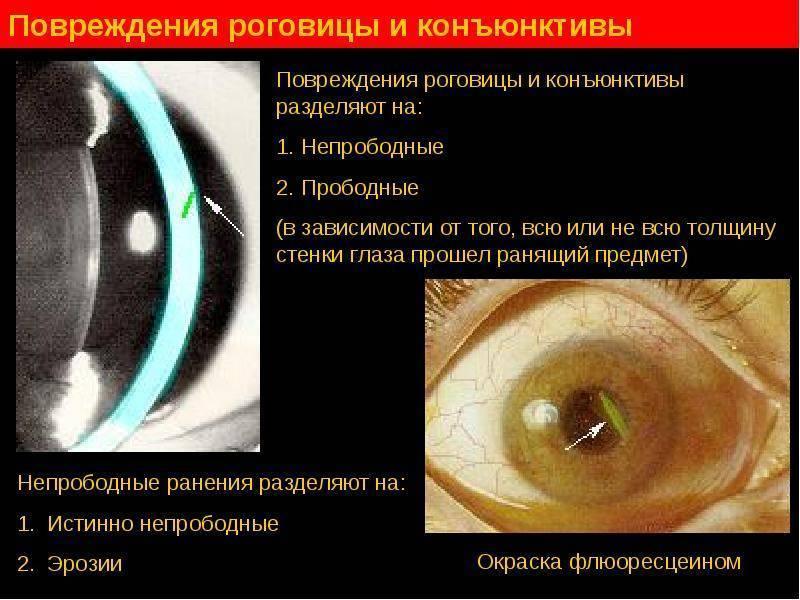 Поверхностные повреждения глаз