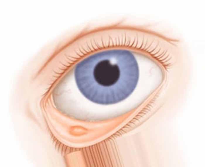 Киста глаза или киста глазного яблока, причины и способы лечения. почему появляется киста на глазу и что делать? киста глаза причины и лечение