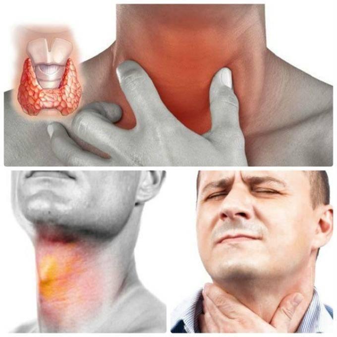 Ринофарингит, симптомы и лечение у взрослых