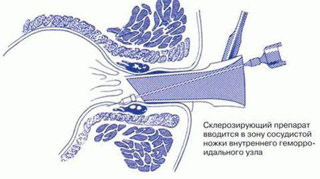 Склеротерапия при геморрое