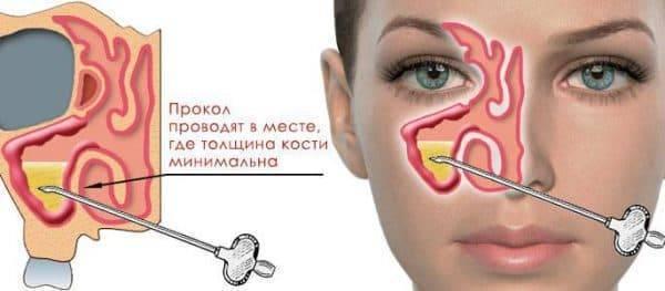 Причины отека носоглотки и как снять заложенность носа