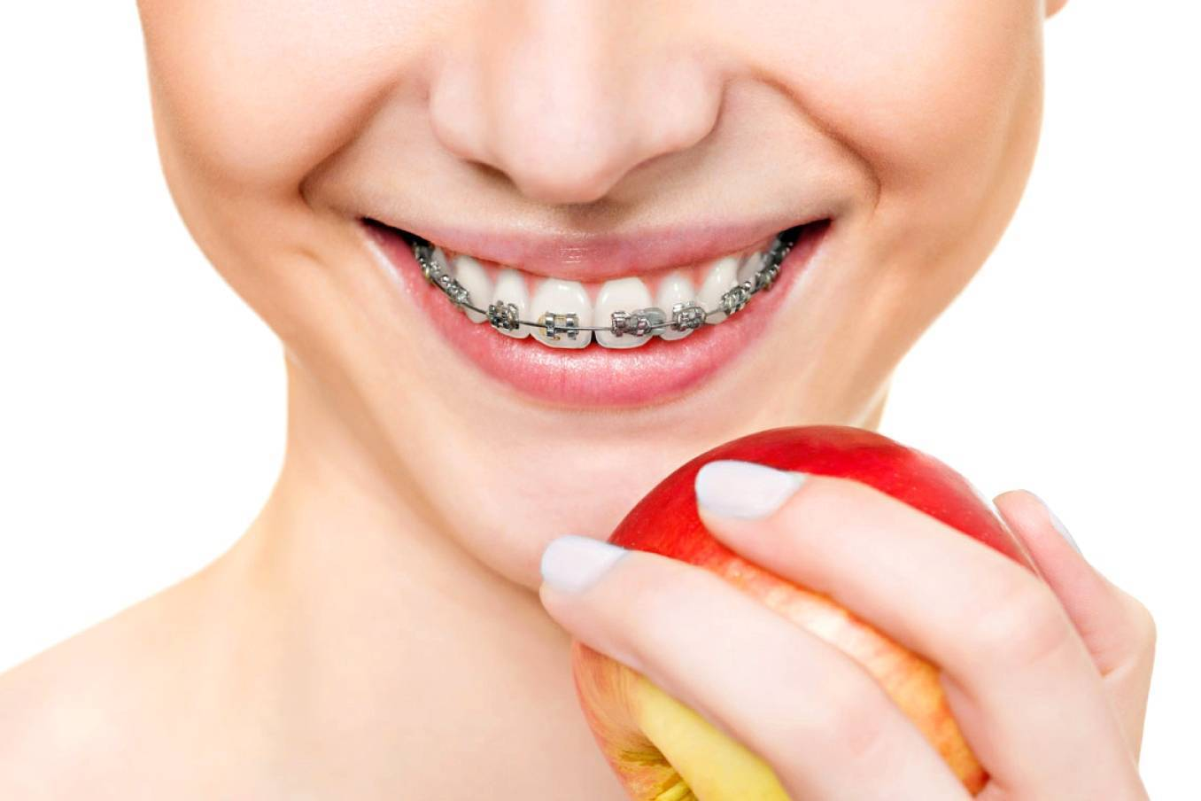 Ортодонтия — что это
