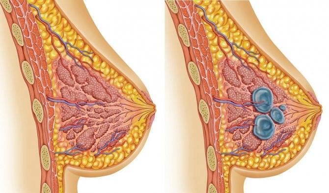 как вылечить фиброзно кистозную мастопатию народными средствами
