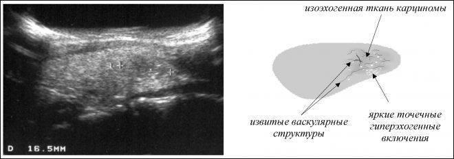 Что такое гипоэхогенный узел щитовидной железы