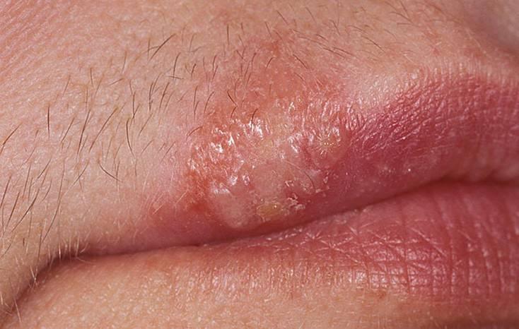 Заразен ли герпес на губе при оральном сексе