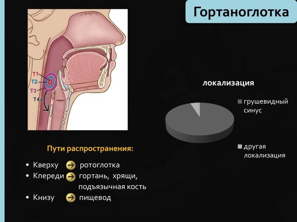 недифференцированный рак носоглотки