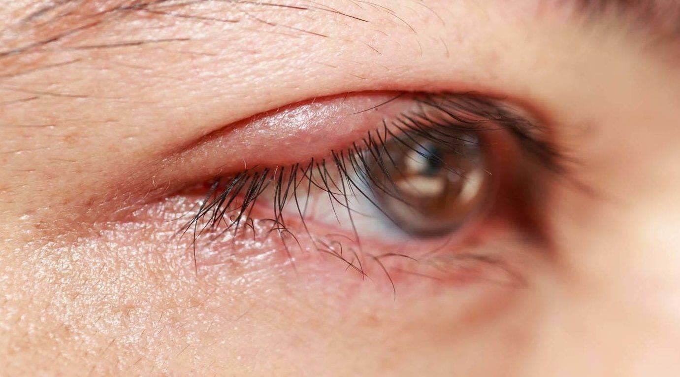 Кисты на сетчатке глаза