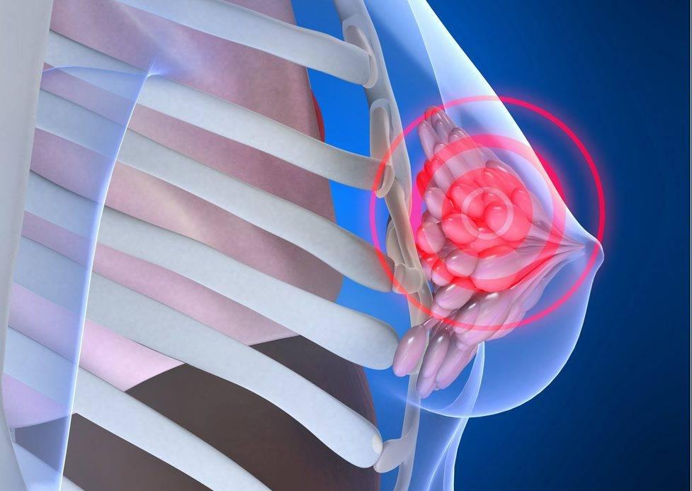 Как лечить мастопатию молочной железы — основные способы и препараты