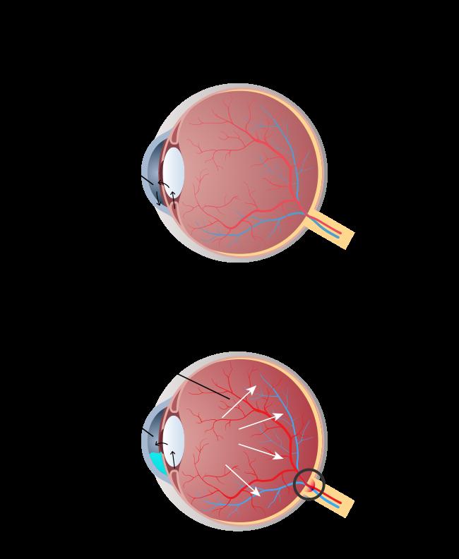 Глаукома: что это за болезнь. что нужно знать о глаукоме