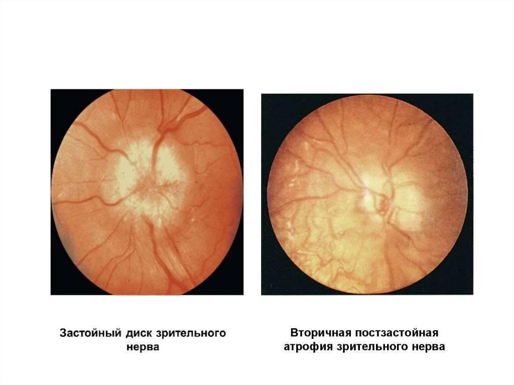 диагноз атрофия зрительного нерва