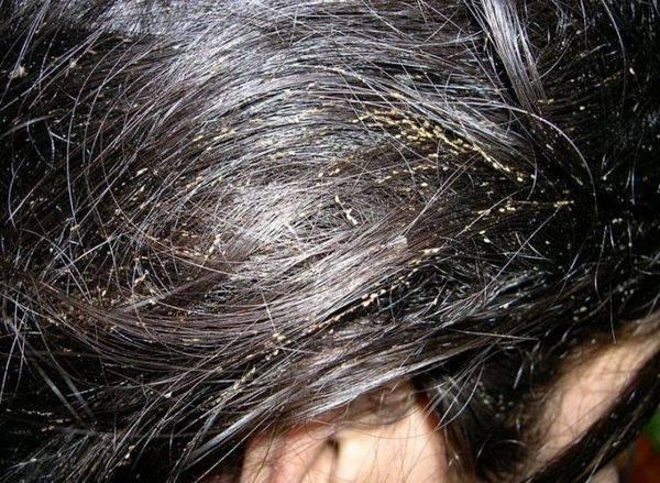Насколько эффективна краска для волос при борьбе со вшами?