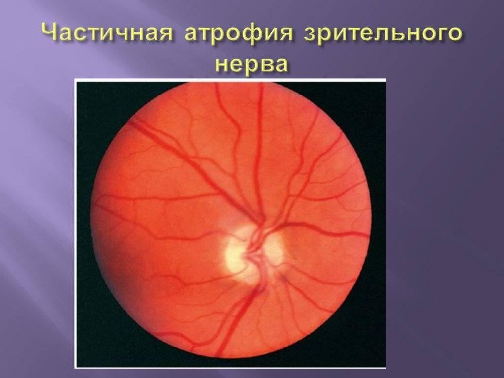 Безжалостная и с трудом излечимая болезнь: как проявляется нисходящая атрофия зрительного нерва?