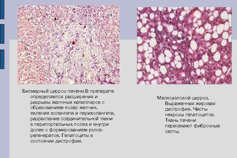 Билиарный цирроз печени: как выявить и можно ли вылечить?