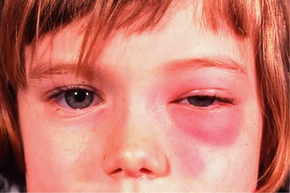 Глазные капли от покраснения, раздражения и воспаления