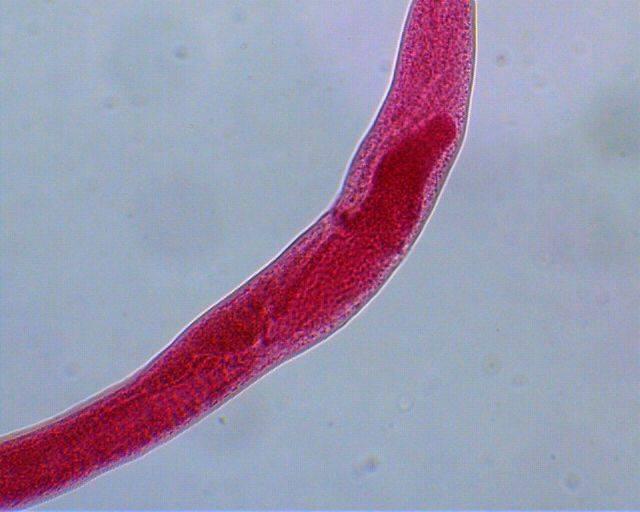 Шистосомоз мочеполовой, мансони, японский: жизненный цикл, морфофизиология шистосом, симптомы, лечение