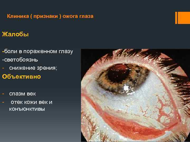 Опасность ожогов роговицы глаз и что делать