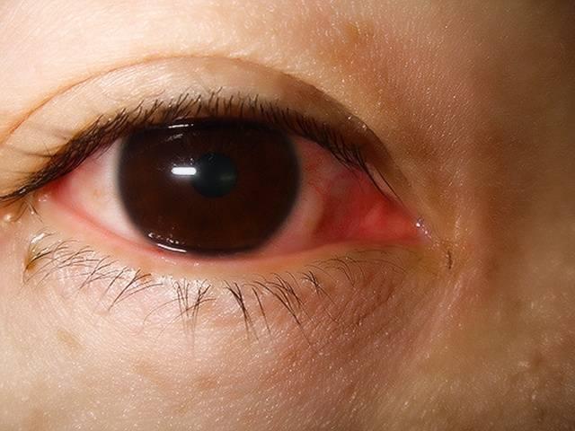 глаза красные и слезятся