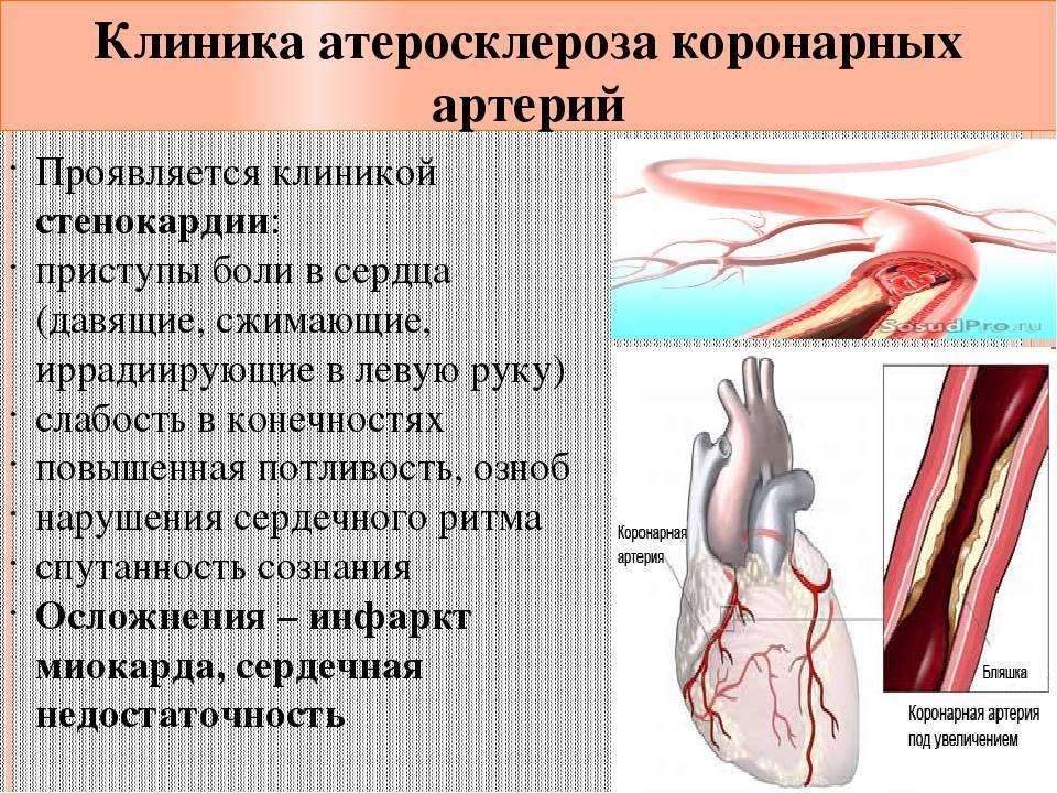 коронарный атеросклероз причины