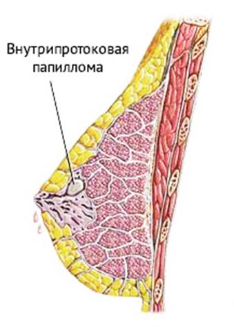 внутрипротоковая папиллома молочной железы после операции