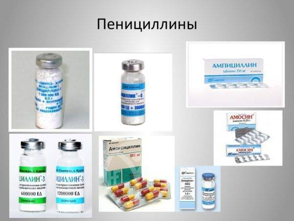 Антибиотики при тонзиллите у взрослых и детей
