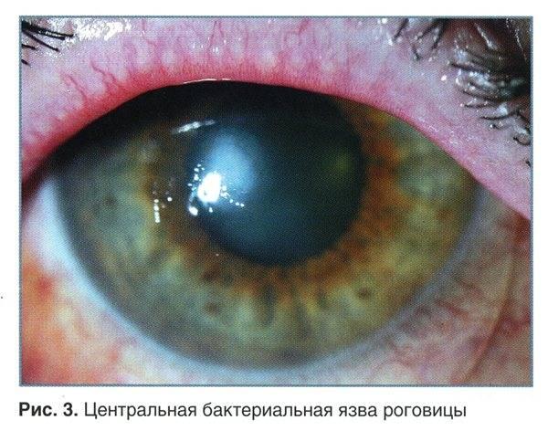 Язва роговицы, причины, симптомы, лечение язвы роговицы. все о глазных болезнях.