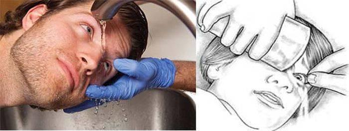 Фурацилин в глаза: особенности промывания в офтальмологической практике
