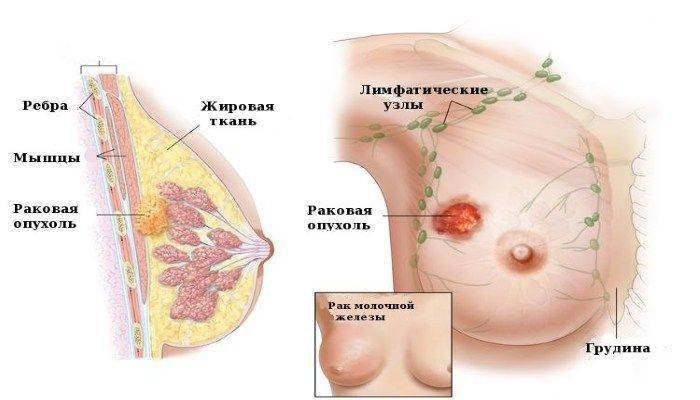 Признаки мастопатии рака молочных желез