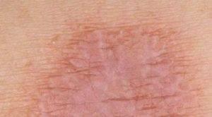 контактный дерматит в паху