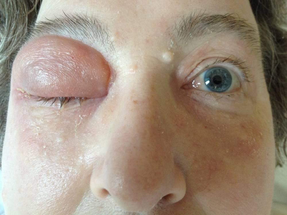 Воспаление века глаза: чем лечить болезнь на верхней и нижней глазной области, особенности лечения патологии каждого вида, фото