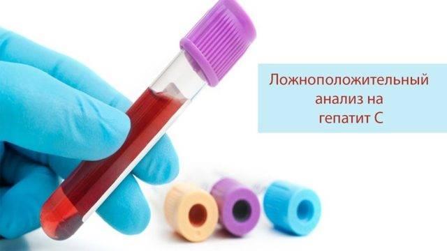 Причины ложноположительного анализа на гепатит c