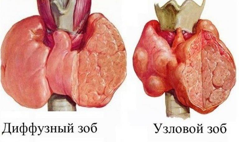 Причины, симптомы, степени и лечение диффузно-узлового зоба