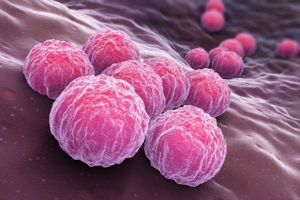 хламидия трахоматис у женщин