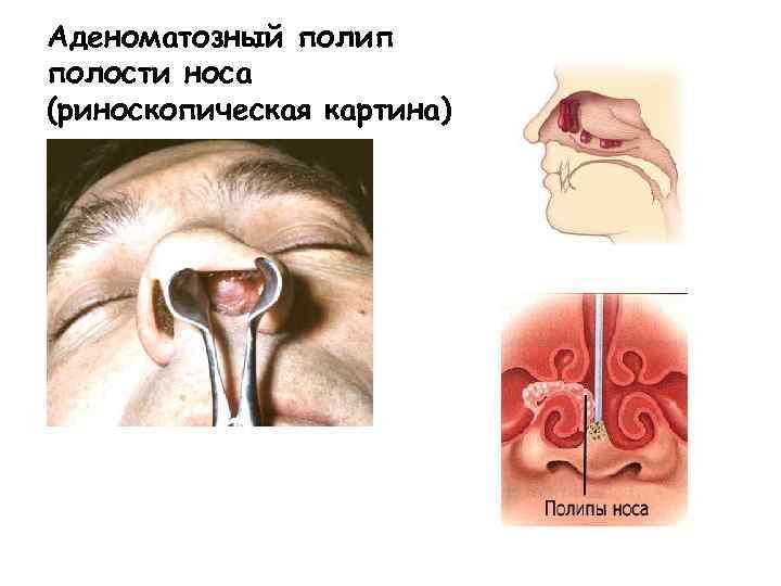 Лечение полипов в носу без операции с помощью лекарственных и народных средств